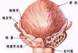 前列腺痛,三种炎症类型表现之一
