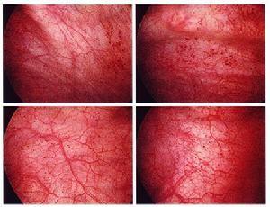 医生介绍尖锐湿疣的潜伏期和典型症状